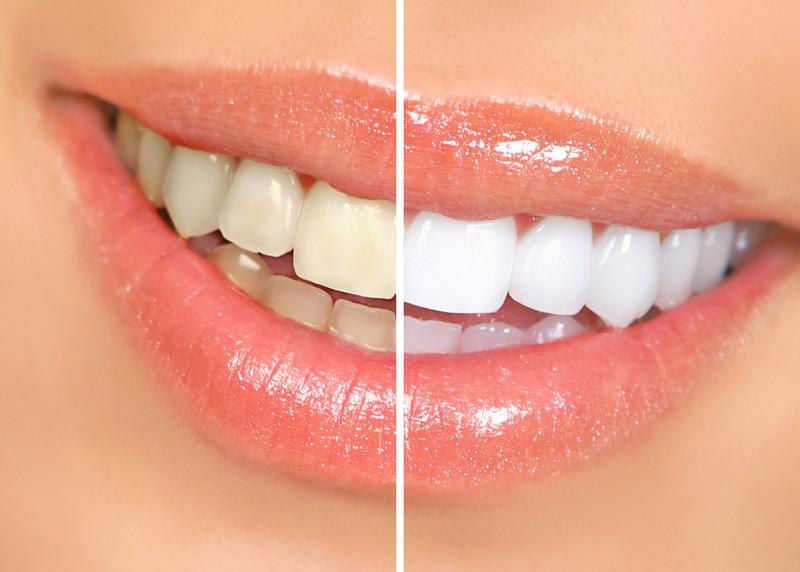 Teeth Whitening Whittier, CA